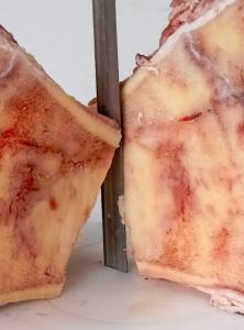 EXAKT Technologies, Pathology Saw, diamond band, grossing tissue